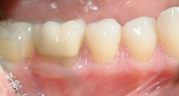 Novel approach to gingival grafting: Single-stage augmentation graft for root coverage