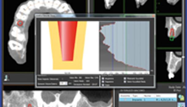 EGIS, novedades en cirugía implantoprotésica guiada