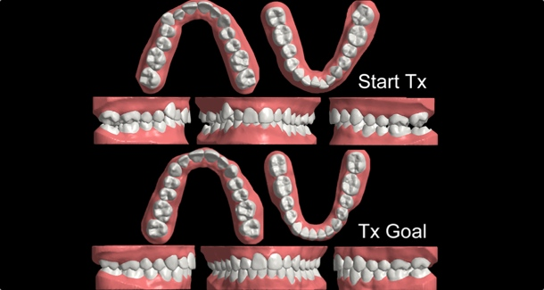 Clear aligner therapy: Begin with the end in mind