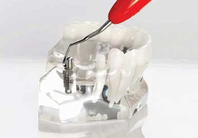 ErgoMix Mini Implant Instruments :Dental Tribune Italy