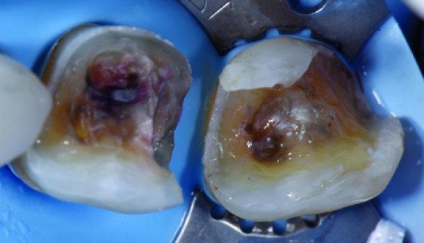 Комплексная прямая реставрация жевательных зубов с применением ормокера