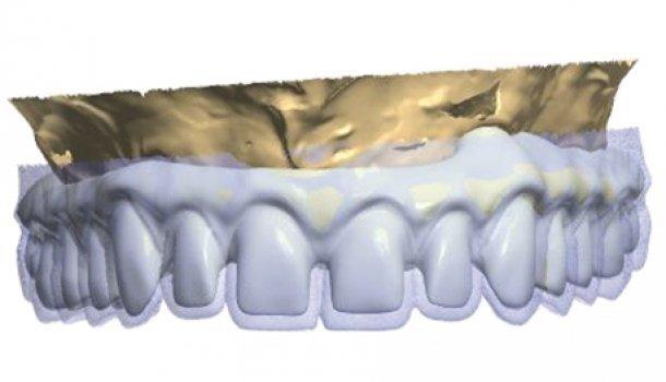 Применение КЛКТ и CAD/CAM в рамках комплексной имплантологической реабилитации верхней челюсти – Часть I