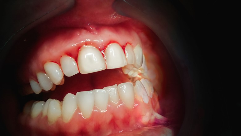 Parodontitis en chronisch nierfalen verbonden door oxidatieve stress
