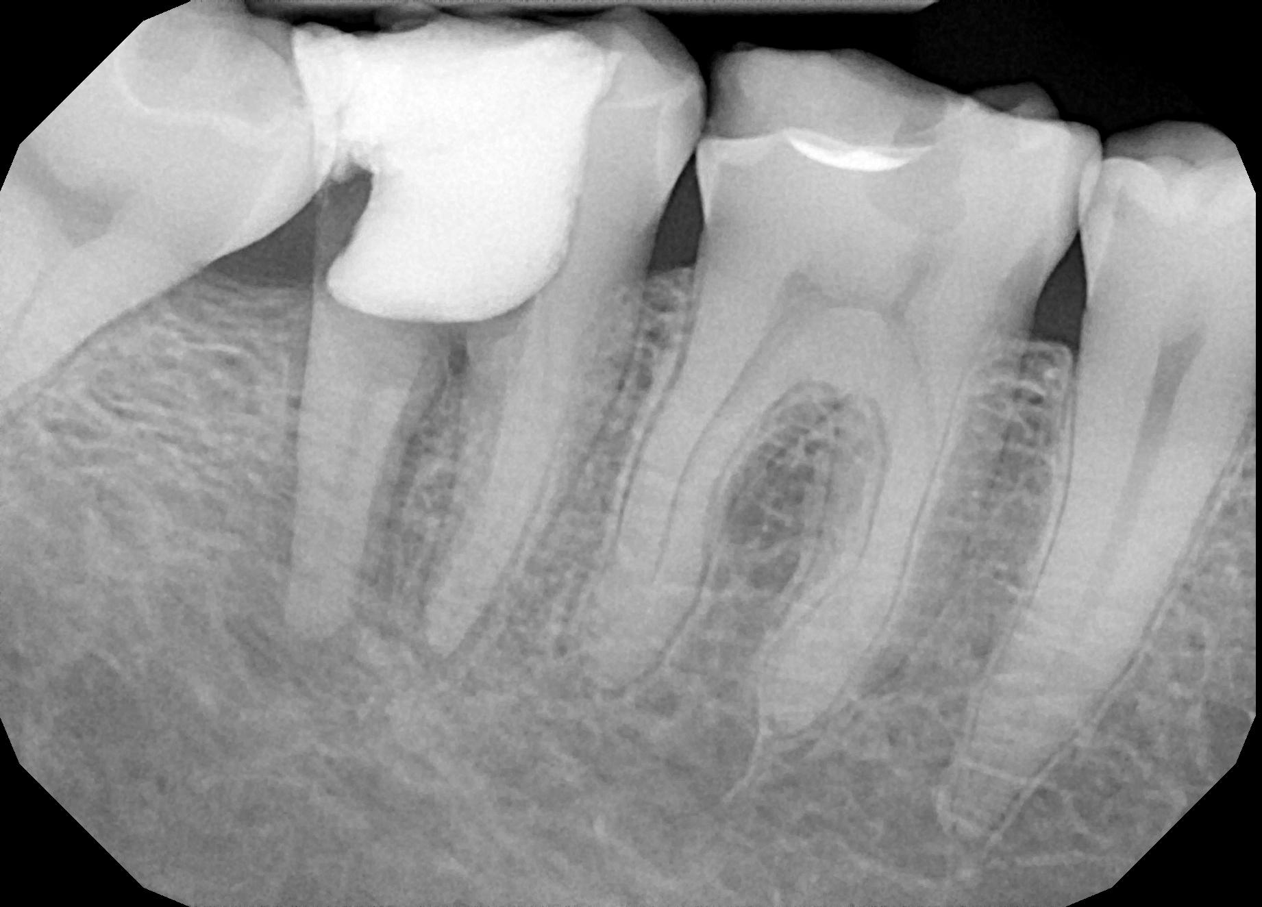 Rešavanje problema neuspelog endodontskog lečenja zuba