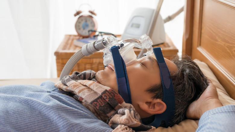 L'efficacité des appareils buccaux dans le traitement de l'apnée obstructive du sommeil