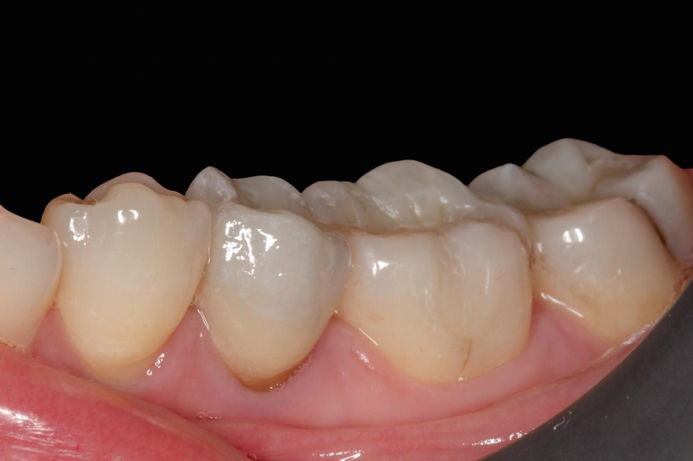 El espectrofotómetro en la estética dental