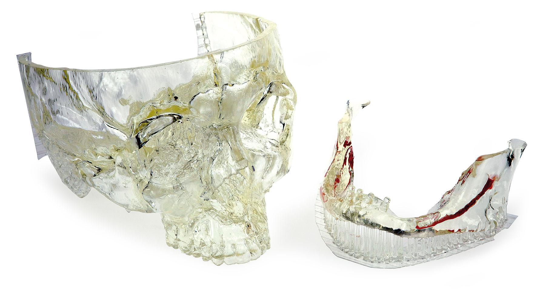 3D printeri u stomatologiji i zubnoj tehnici danas