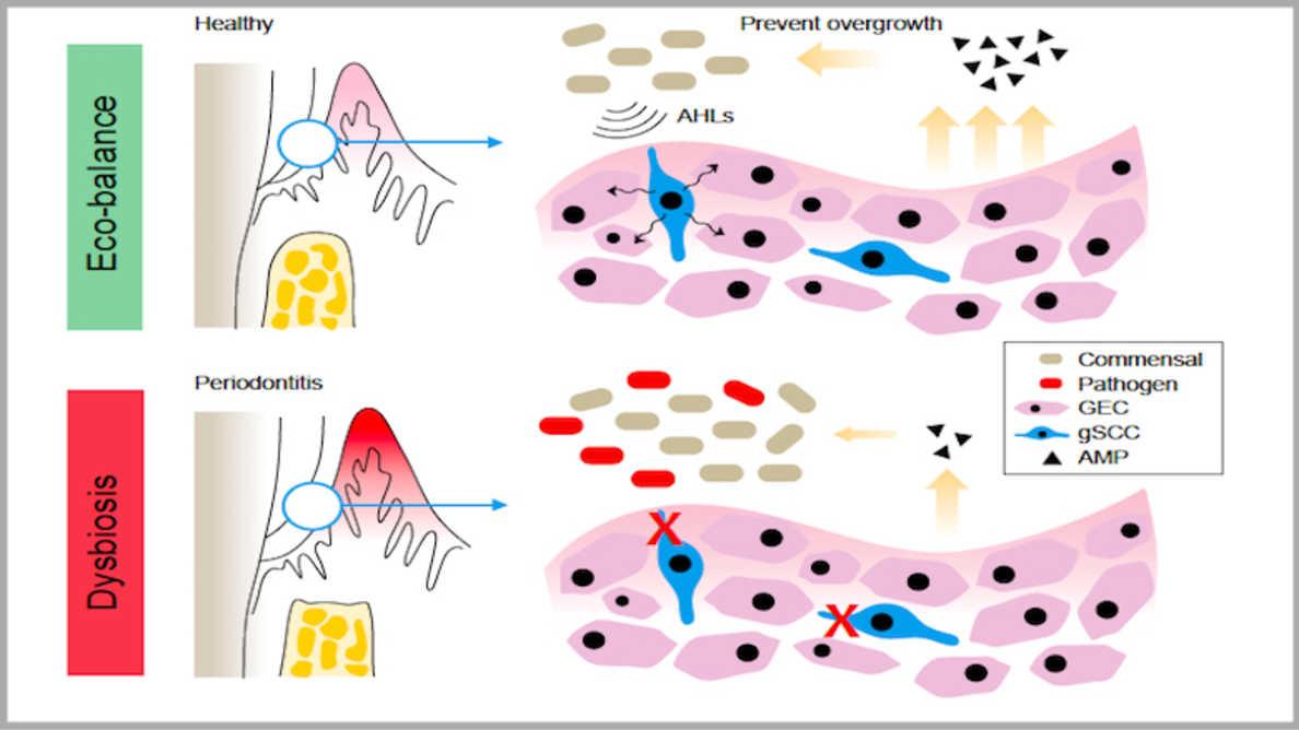 В гингивата са открити клетки, които предпазват от пародонтит