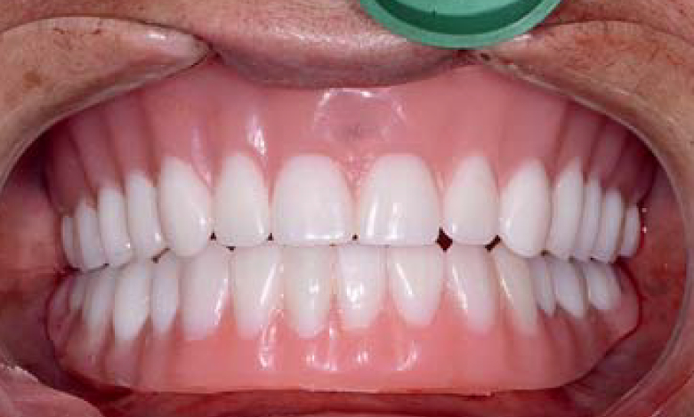 L'apport des solutions CFAO aux restaurations complètes sur implants
