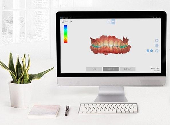 El escáner intraoral 3DS capta imágenes de alta precisión y color real.