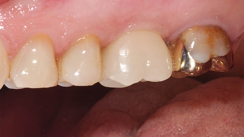 An intelligent treatment concept for the implant-supported individual tooth crown