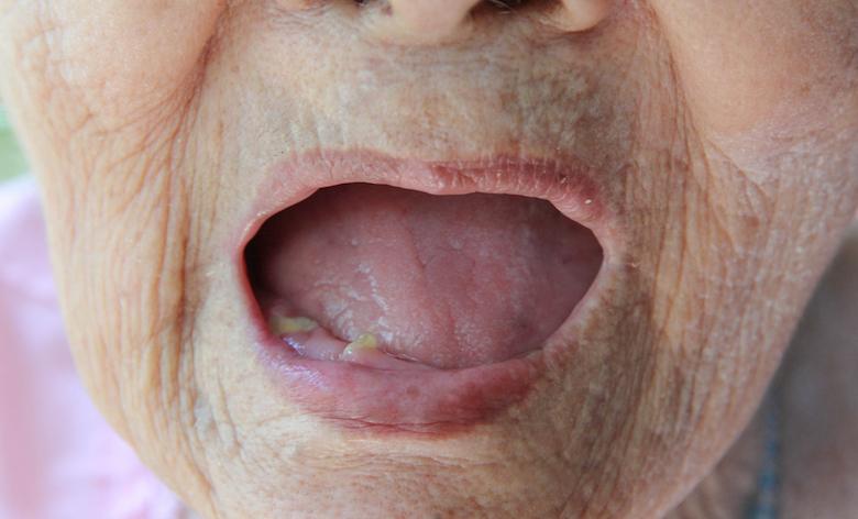 牙齿缺失的成年患者或有更高的罹患心血管疾病的风险