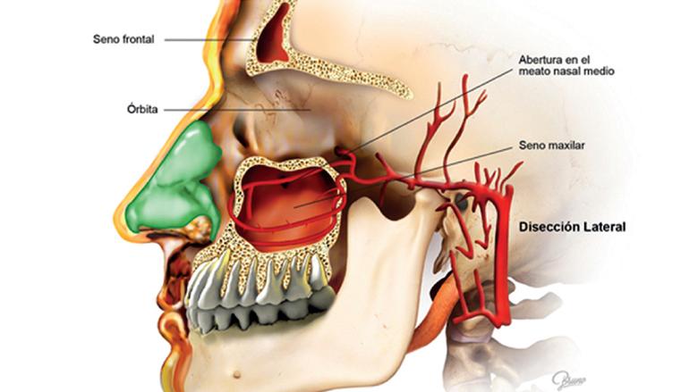 La importancia de la anatomía sinusal