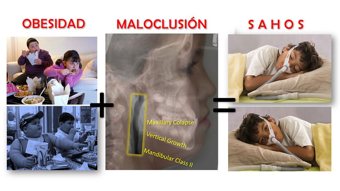 El papel del Ortodoncista en la Patología del Sueño (1)