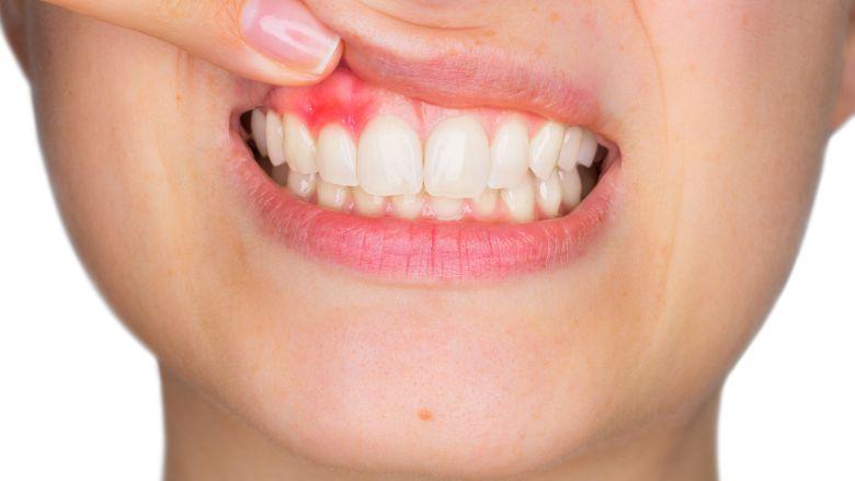 Cellen in gingiva bieden bescherming tegen parodontitis