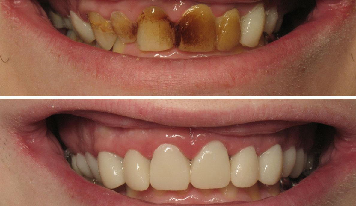 Dúo de expertos: el software y los dientes provisionales