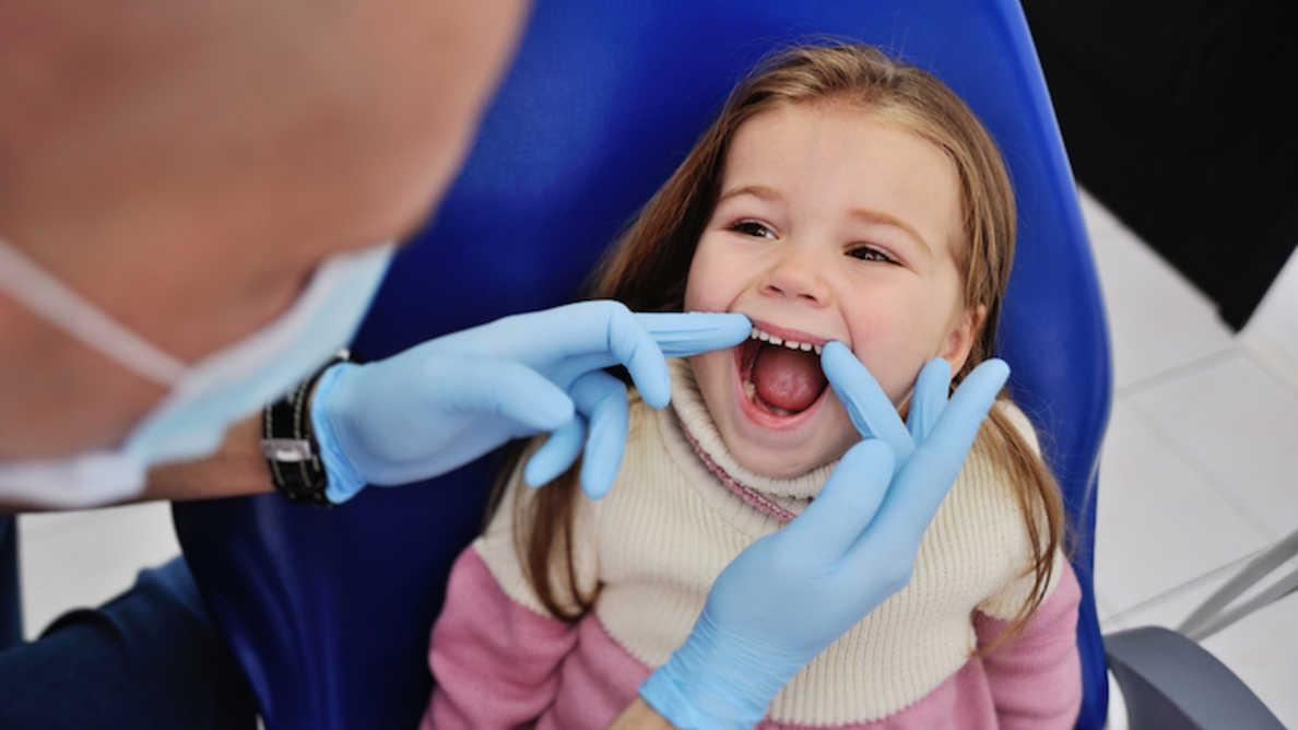 Estudo mostra que obturações podem não ser o melhor tratamento para cárie dentária na infância