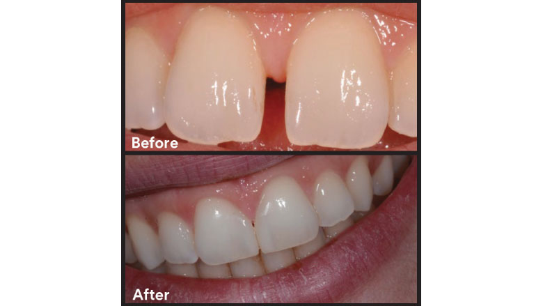 Midline diastema closure using  the front wing technique