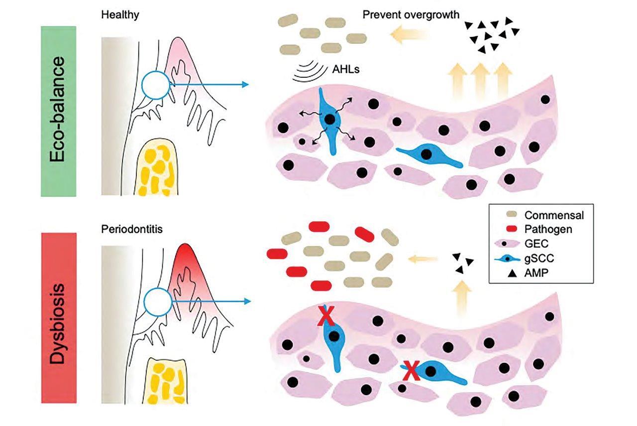 Identificirali so celice v dlesni, ki ščitijo pred parodontalno boleznijo