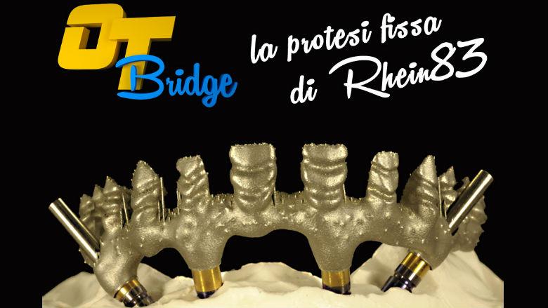 OT BRIDGE: la protesi fissa secondo la Rhein83
