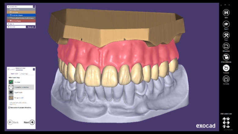 Out now: exocad releases DentalCAD 2.4 Plovdiv