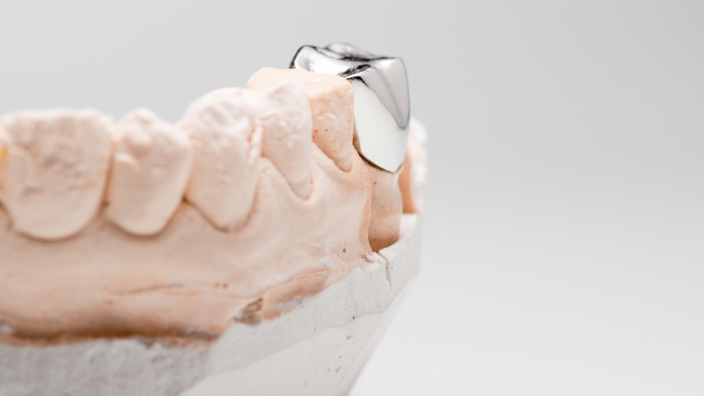 Study proves effectiveness of stainless-steel crowns in restoring permanent teeth