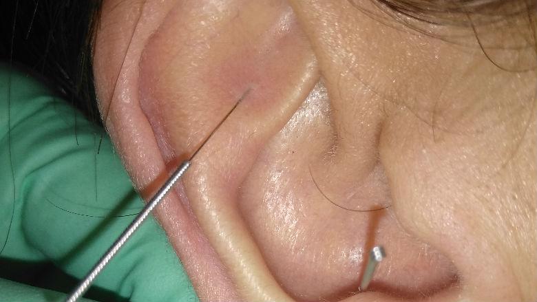 Agopuntura nel trattamento della SLA: implicazioni sistemiche e oro-faringee