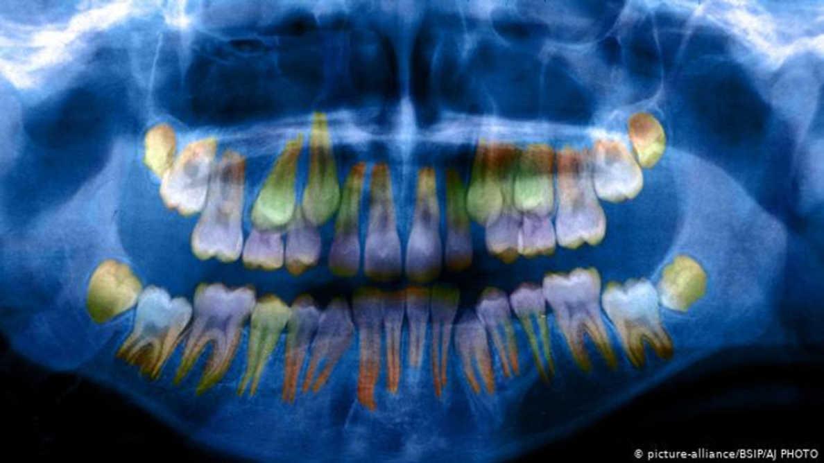 Poziomy stresu jest widoczny w stanie zębów