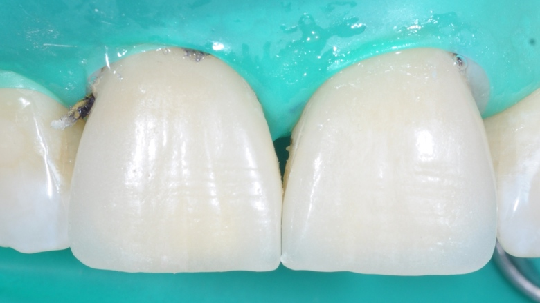 Clinical case: Central incisor veneers with PANAVIA V5