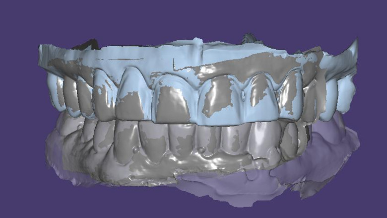 Digital face-bow transfer technique dentofacial analyser for dental aesthetics