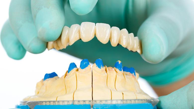 Coronavirus: Gefahr durch Zahnersatz aus China?