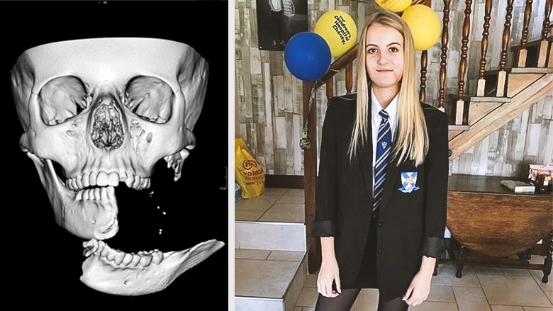 Dreadful horse-riding accident leaves girl with split mandible