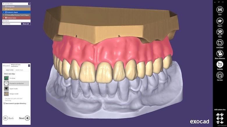 exocad DentalCAD 2.4 Plovdiv现已发布 数字化全口义齿从未如此简单