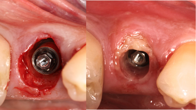 Immediate loading of a socket shield post-extraction implant with the final CAD/CAM crown
