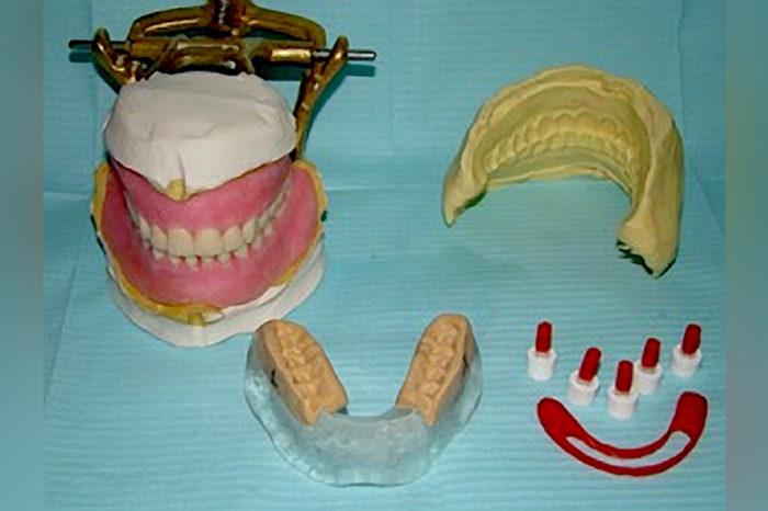 Fig. 30. Todo lo necesario previo a la cirugía y colocación de los implantes dentales: encerado diagnóstico, prueba estética, guía quirúrgica, guías de mordida, postes de impresión modificados, Guía vestibular de Putty, barra de Duralay OSU.