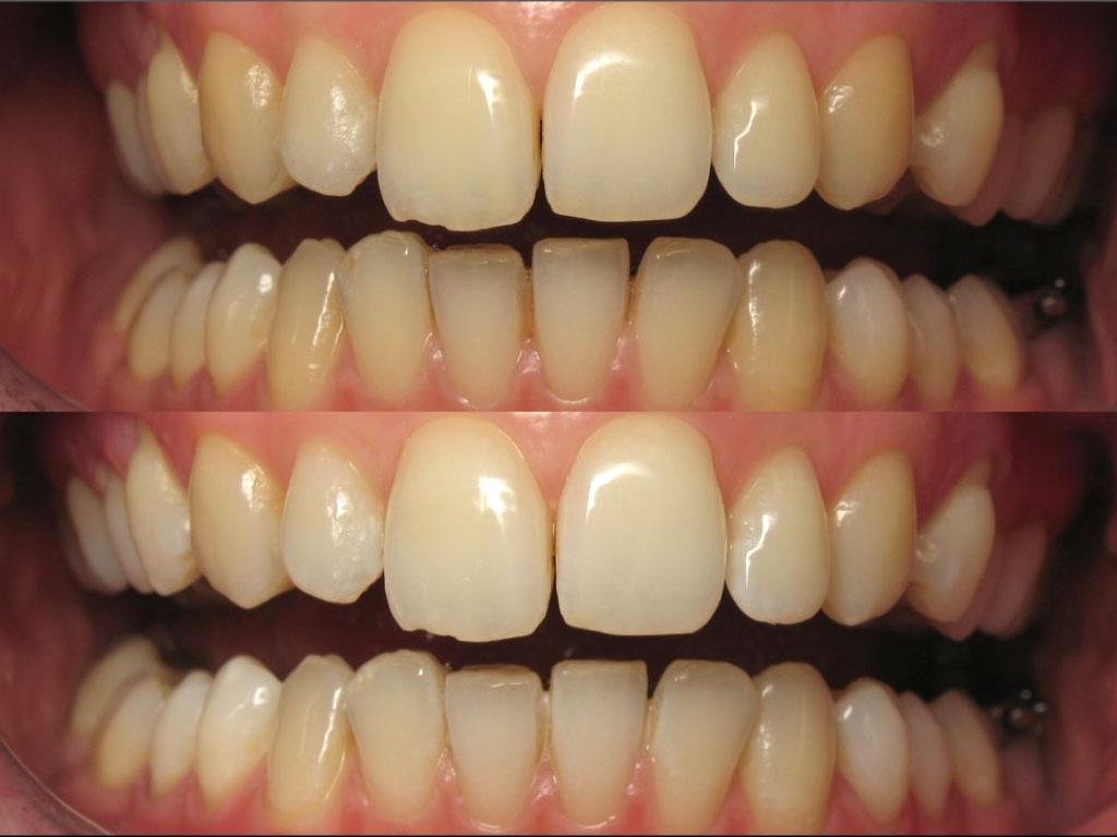 Ortodoncia y Blanqueamiento: La guinda del pastel
