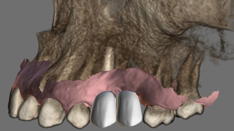 È qui il futuro: implantologia navigata con il Navident