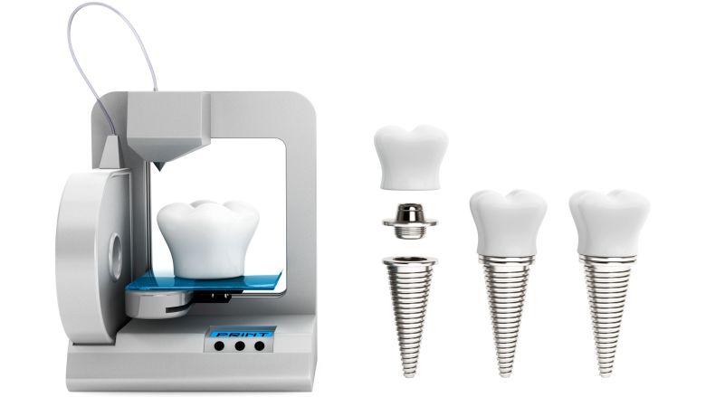 Le doctorant Mihai Tarce étudie à la KU Leuven l'effet de la numérisation sur la parodontologie