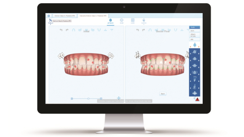 Align Technology expands digital platform with ClinCheck™ Pro 6.0 and In-Face Visualization