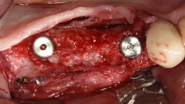 G.B.R di un grave difetto osseo orizzontale e verticale della mandibola con griglia in titanio