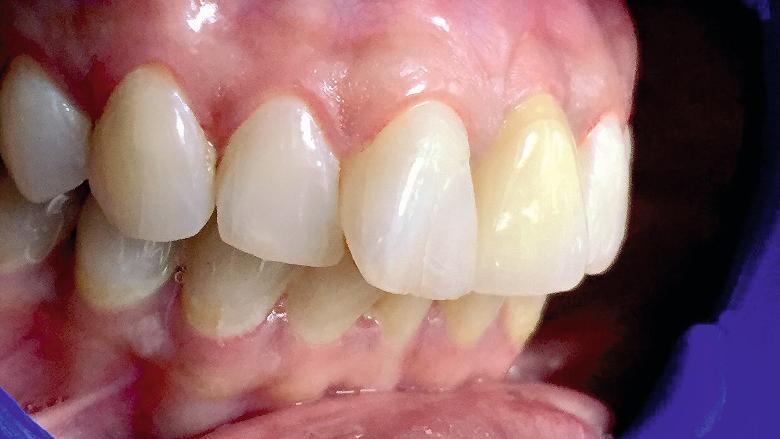 Mise en place immédiate dans la zone maxillaire intéressée par l'esthétique