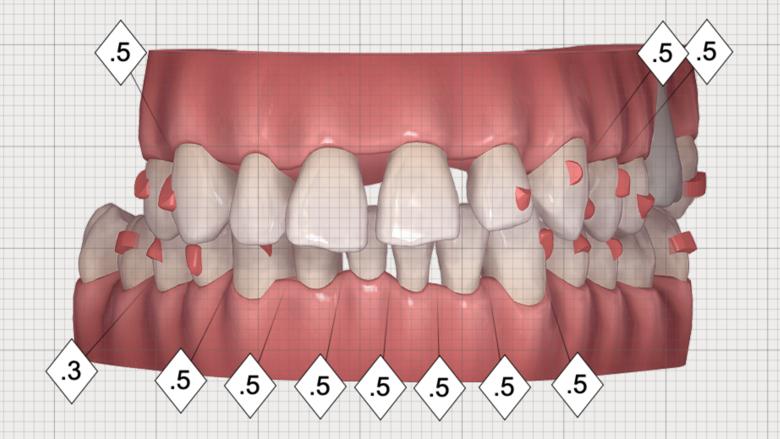 Multidisciplinární léčba u pacienta se závažnou parodontitidou