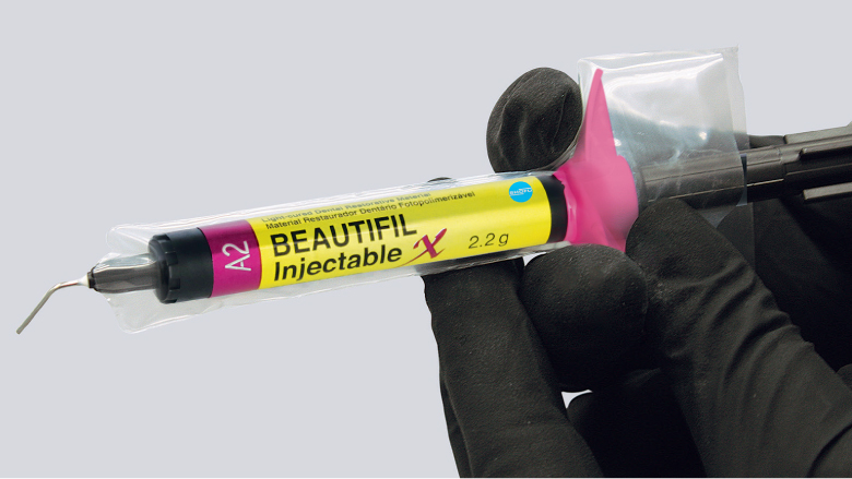 Inject and shape for easier, faster, stronger restorations