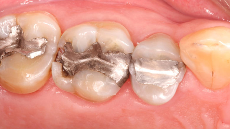 US dentists are using nearly half of country's total mercury in products