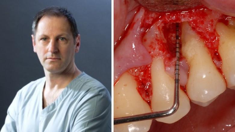 Terapia rigenerativa di un difetto infraosseo con approccio mini invasivo