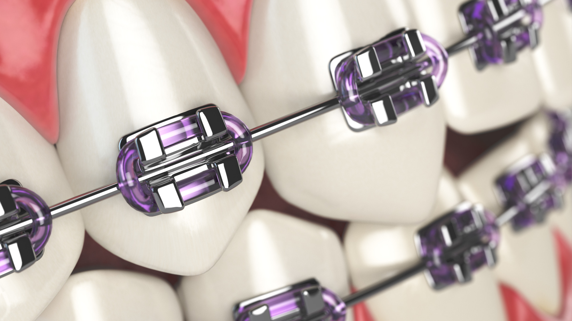 Will COVID-19 push orthodontics further into the digital space?