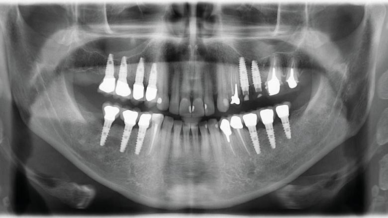 Cas clinique de chirurgie guidée : extraction, implantation et mise en esthétique immédiate