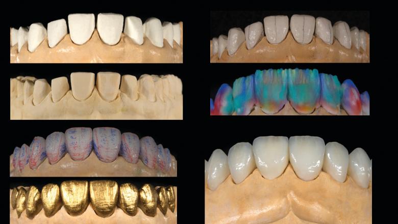 Flux de travail analogique vs flux de travail numérique sur dix facettes maxillaires en céramique
