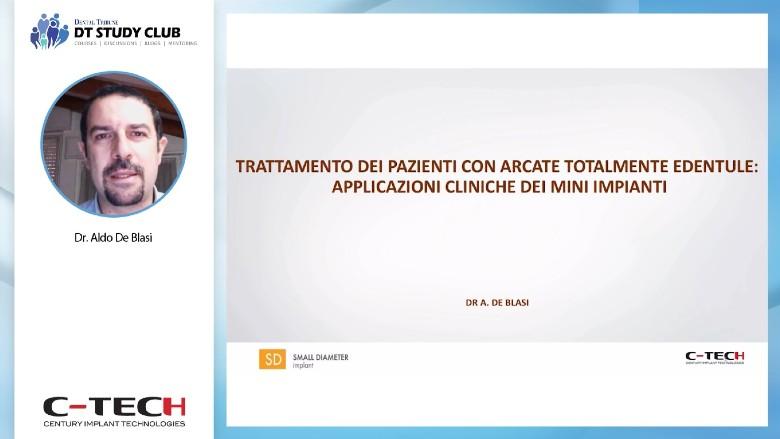 Trattamento dei pazienti con arcate totalmente edentule: applicazioni cliniche dei mini impianti