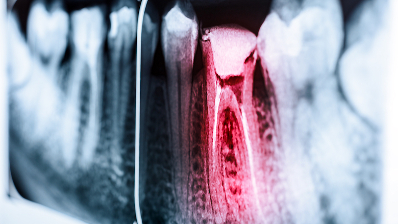 Researchers plan to develop smartphone sensor to detect tooth pain